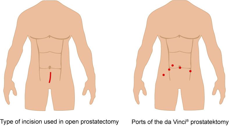 Da Vinci Prostatectomy Departement Of Urology University